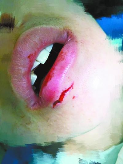 女子下唇需縫針。網上圖片