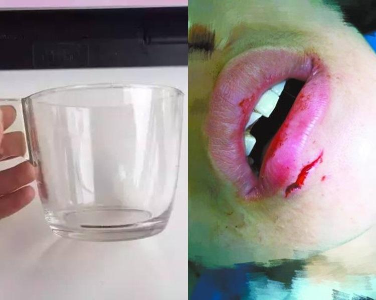 北京女飲水突爆杯致崩牙下唇縫針。網上圖片