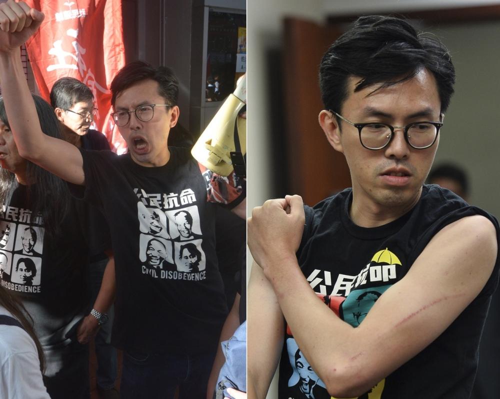 吳文遠聲稱示威中受傷。