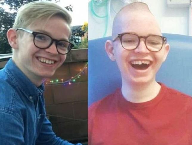 16歲少年羅伯茨遭酒駕司機撞倒後,頭骨嚴重變形,半邊身癱瘓。