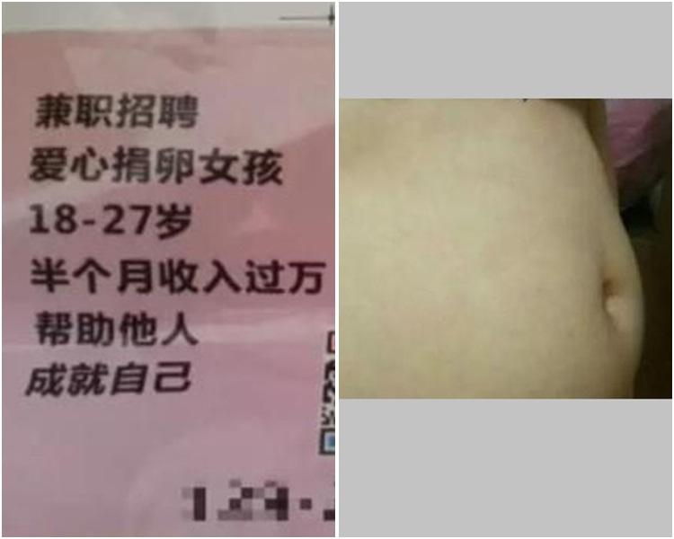 小陳的肚子開始發脹疼痛如懷孕5個月那麼大。