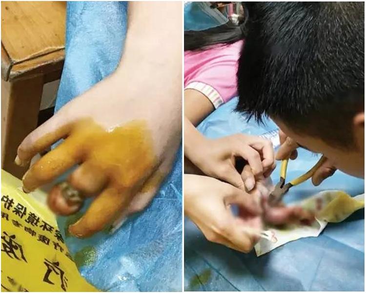11歲女孩被戒指卡手近3個月,手指腐爛露骨。網圖