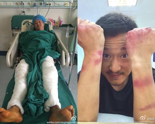 吳京拍《殺破狼2》就真的打到周身傷,當時他還在微博開心些牙。