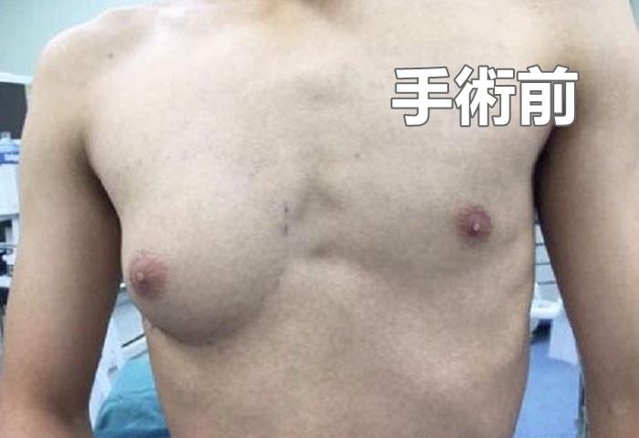 浙江男生小楊,自13歲起左右兩邊乳房發育開始不平衡。網圖
