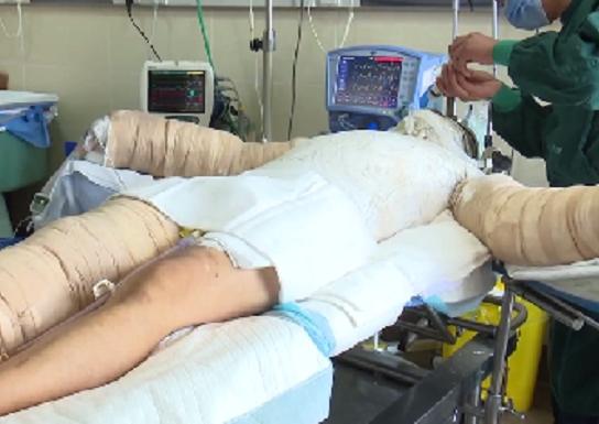 全身皮膚面積55%被燒傷的李連民。 網上圖片