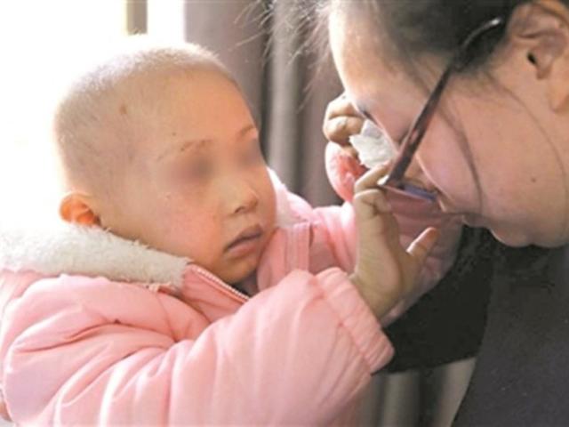 朵朵為了不想媽媽傷心,明明右眼失明都向她說「看得見媽媽」。 網上圖片
