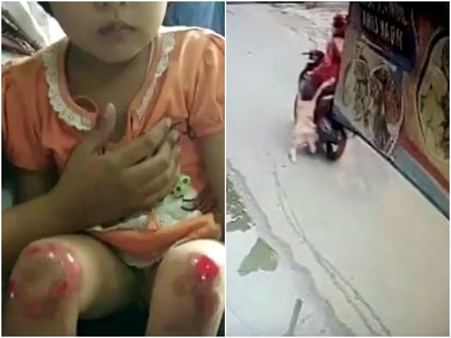 女童雙腿被磨到皮開肉綻。網圖
