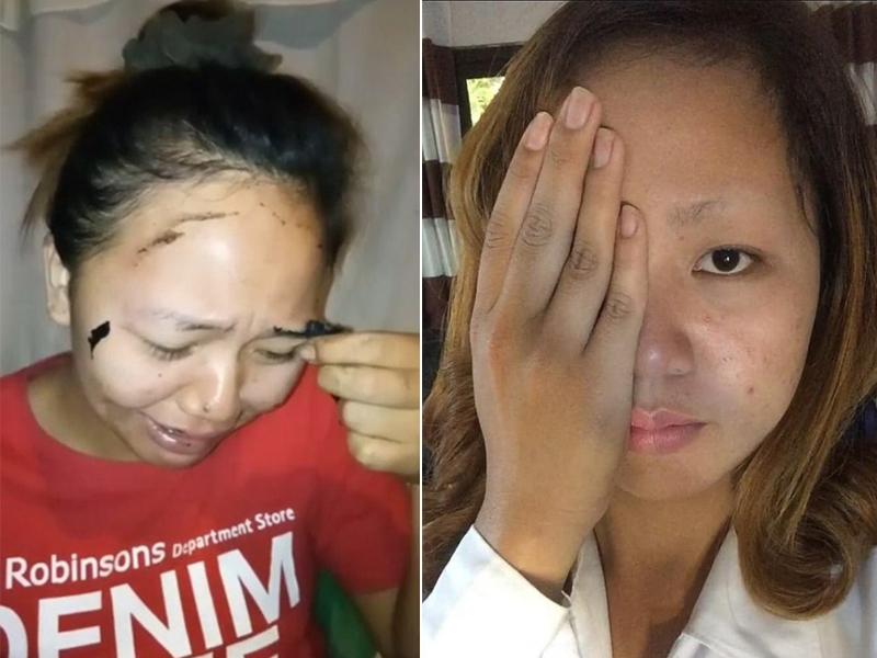 菲律賓一名女子在撕下面膜時整個眉毛也硬生生被拔起。(網圖)