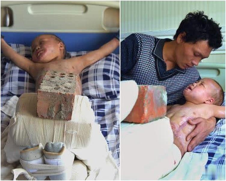 余靜永找來了30多斤的磚頭,壓在兒子的腿上,幫助他做伸展。網圖