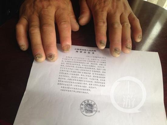 劉忠林遭受嚴刑逼供,雙手十指指甲壞死。(網圖)