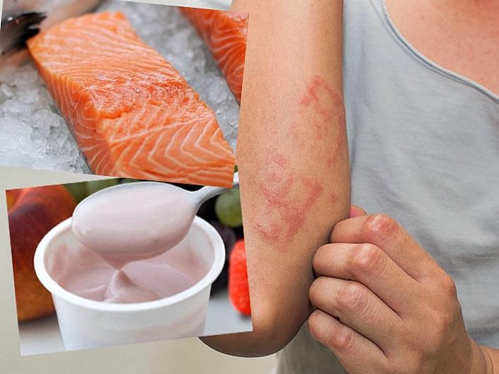通過飲食有助減低身體過敏反應,改善濕疹情況。
