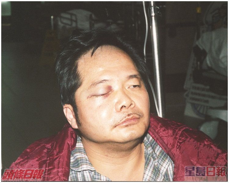 陳乙東在工作地方遇襲。資料圖片