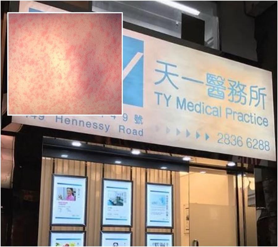 銅鑼灣天一醫務所46歲外籍男病人確診麻疹。網上圖片