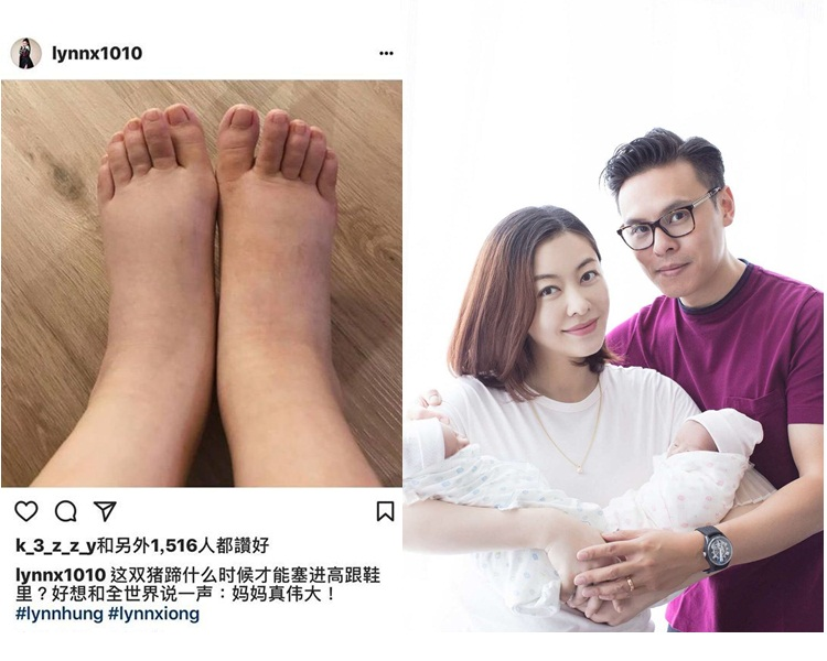 Lynn生完孖女後兩腳水腫似豬蹄,好多網民都安慰她好快沒事可穿回高跟鞋。