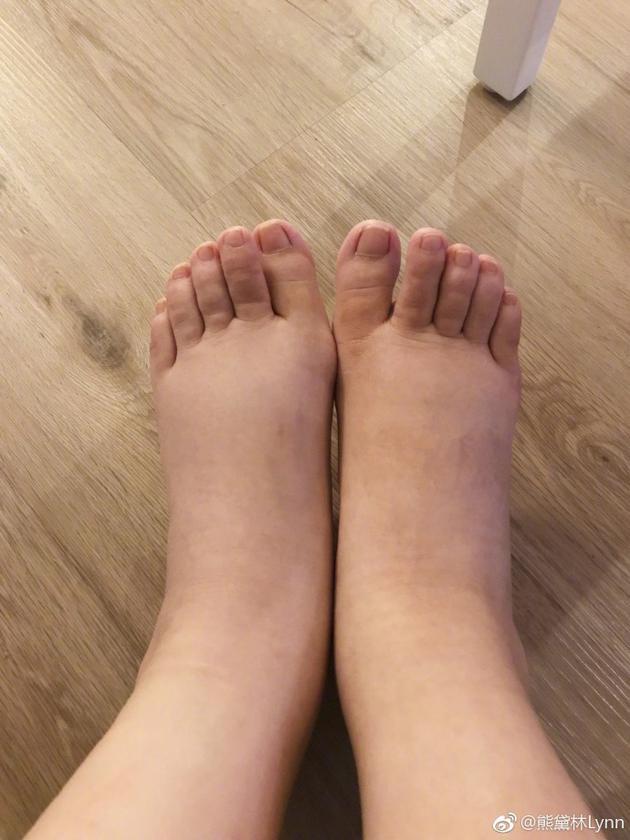 Lynn生完坐月雙腳腫如豬蹄,老公更要愛錫補償她。