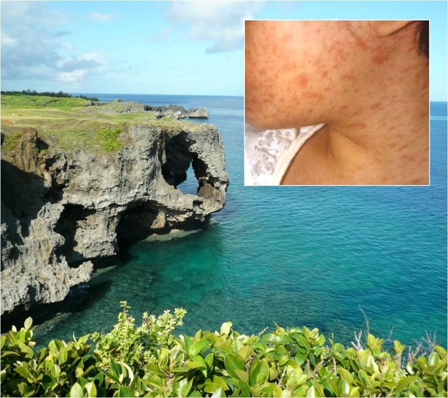 衞生防護中心指日本沖繩麻疹疫情受控。資料圖片
