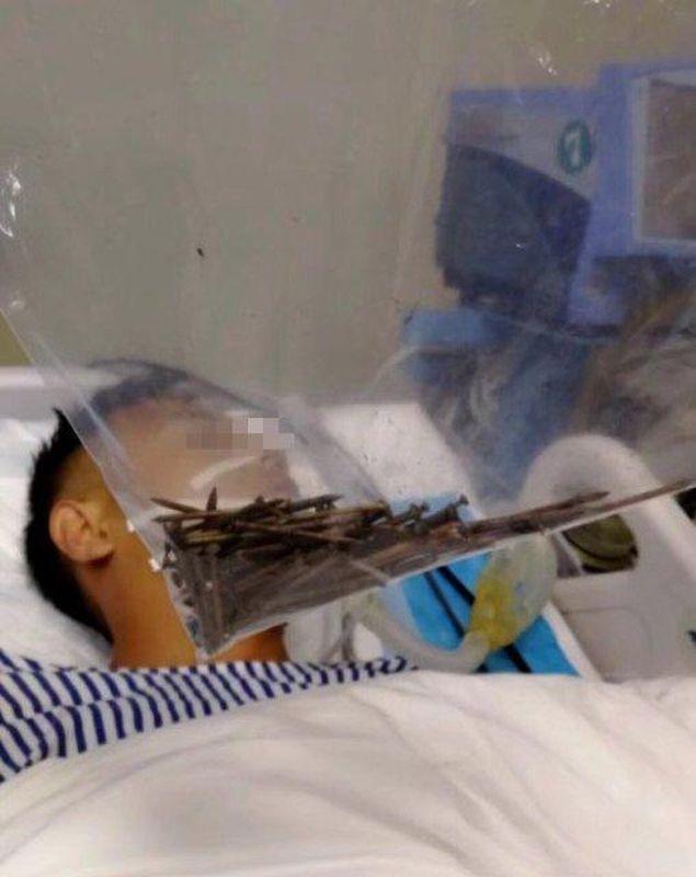 男子經過4小時手術後甦醒。網圖