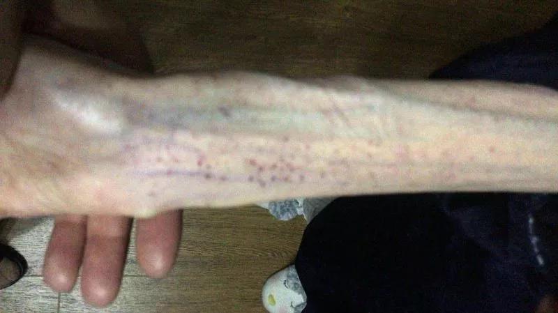過度減肥的小倩虛弱得無法走路,手臂上佈滿紅疹。(網圖)