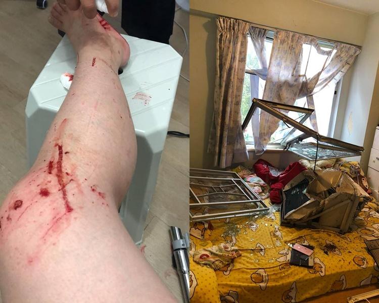 冷氣機連窗框吹入屋,女戶主腳傷浴血。李小姐fb圖片