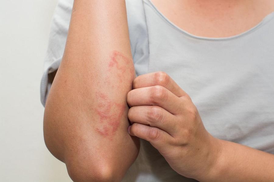 濕疹患者應盡量避免或少吃高水楊酸類的蔬果。