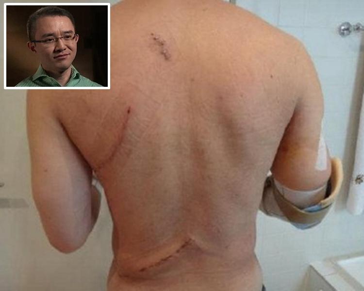Michael Wong(小圖)的背部、頭部和四肢都中了刀傷。網圖