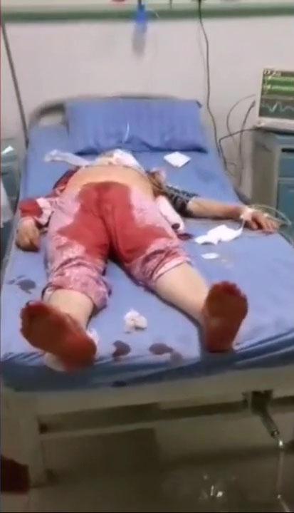 傷者滿身是血。(網圖)