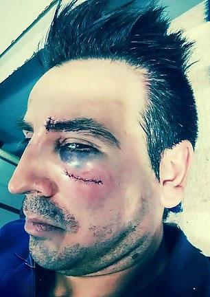 被打老师满脸是伤。(网图)