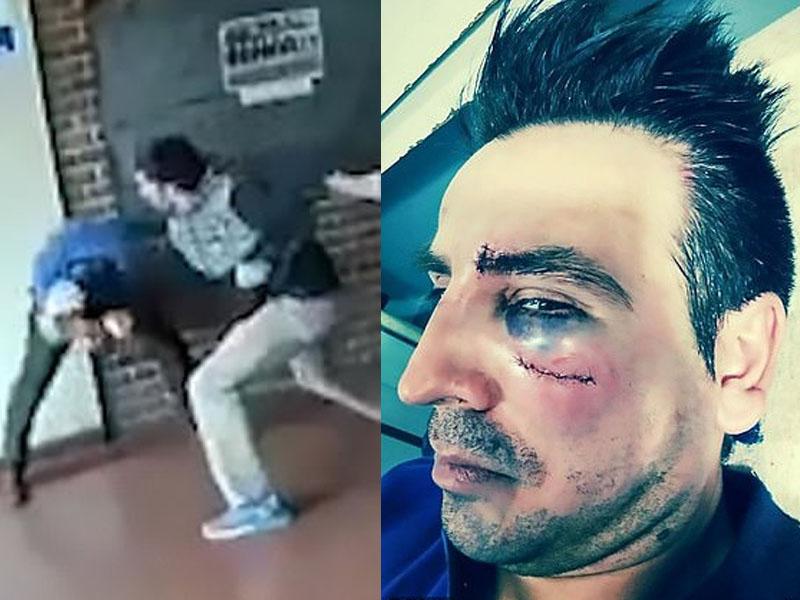 怀疑性骚扰女学生的老师被少女父亲暴打,满脸是伤。(网图)