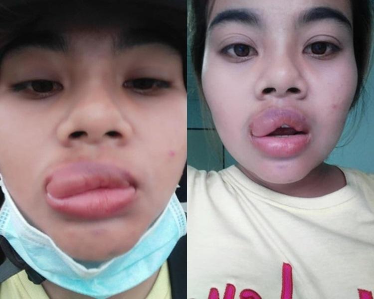 泰女食朋友鹹酥虾手信后嘴唇爆肿。fb图片