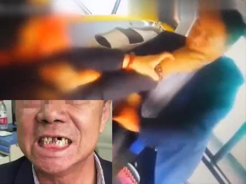 陝西三乘客欲前門下車遭拒,圍毆巴士司機,司機門牙也被打脫落。(網圖)