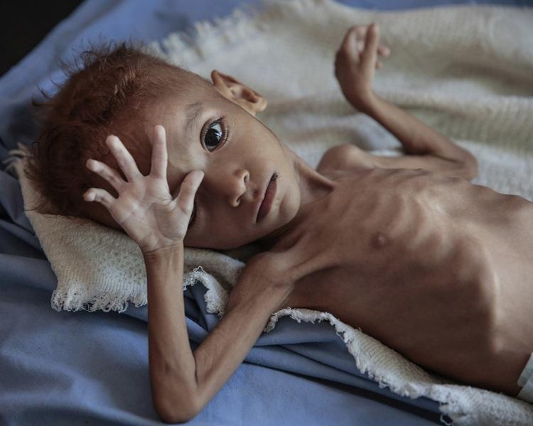 聯合國指全球現時有近7.8兆港元的食物被浪費,同時飢荒問題依然嚴重。AP
