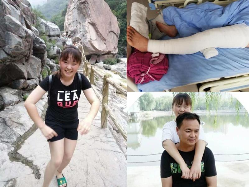 河南新鄉17歲全身80%皮膚燒傷。爸爸將左腿上的皮膚整條移植給了她。(網圖)