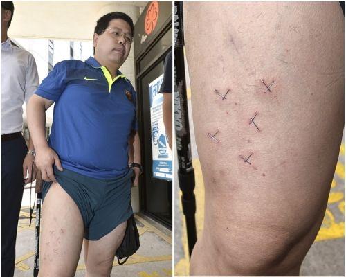 林子健當日展示腿上傷勢。 資料圖片
