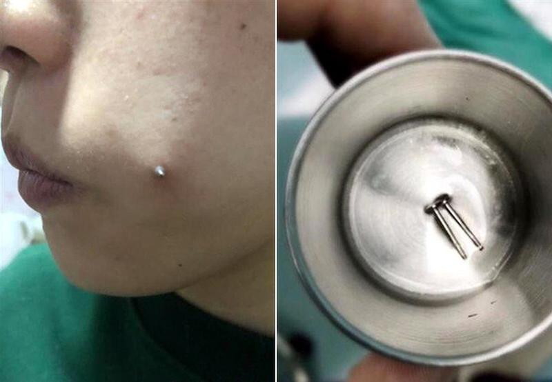 女子打鋼釘「種」酒窩致臉頰發炎,紋身培訓學校用刀片劃臉取不出,事後稱「管打不管取」。(網圖)