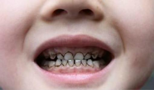 美国疾病控制及预防中心研究显示,儿童使用过量牙膏会出现蛀牙的风险。网图