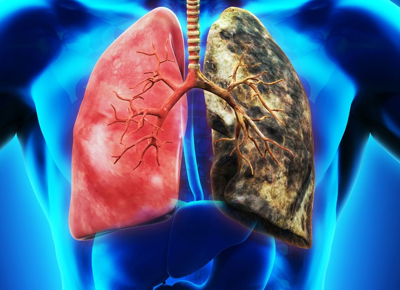 抗生素有机会用于治疗肺癌。网上图片