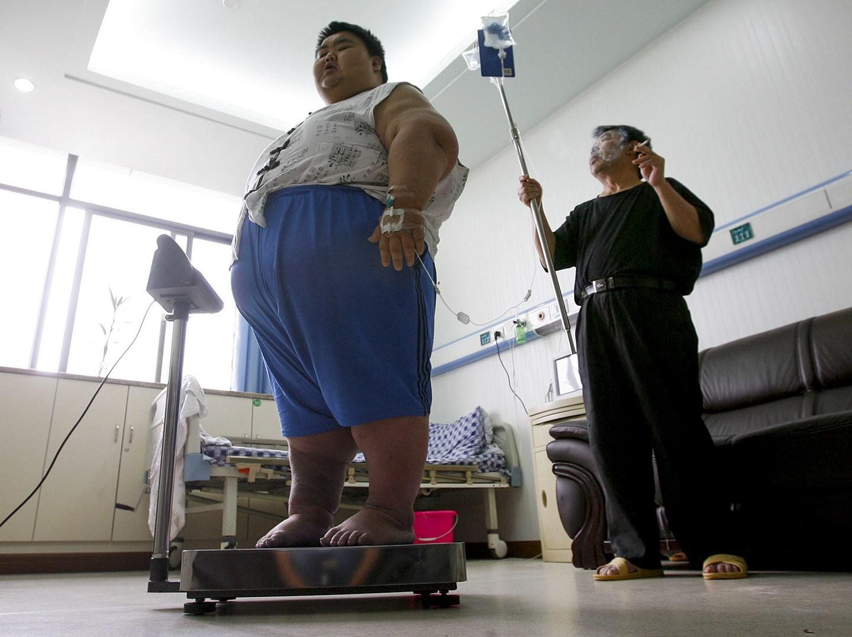 中國肥胖率高居世界第一。網圖