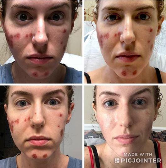 威瑟斯在社交网站分享她脸部受损的照片,显示食肉菌如何侵蚀她的脸颊。威瑟斯Ig