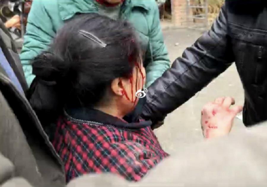有民眾受傷。網上圖片