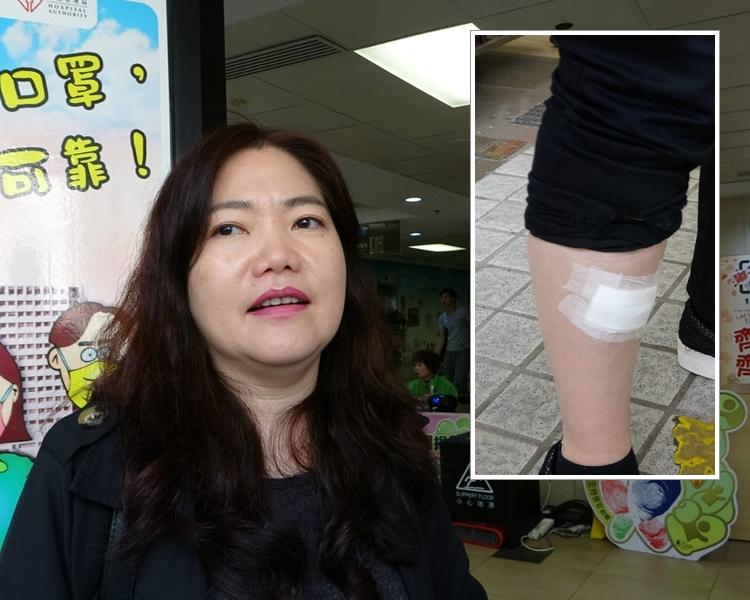 另一名受傷女乘客亦被割傷。 梁國峰攝