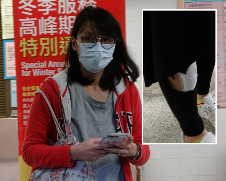 受傷乘客馬小姐送往聯合醫院,經治療後出院。 梁國峰攝