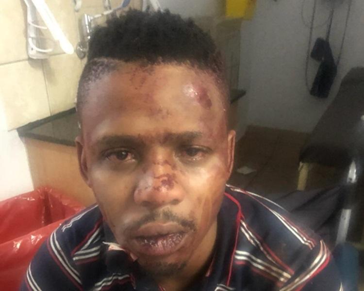 文加斯公开自己伤势。Samora Mangesi Twitter