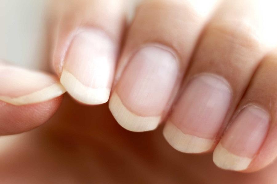 健康的指甲底色應呈現紅潤的粉紅色、表面有光澤,厚度均勻。網圖