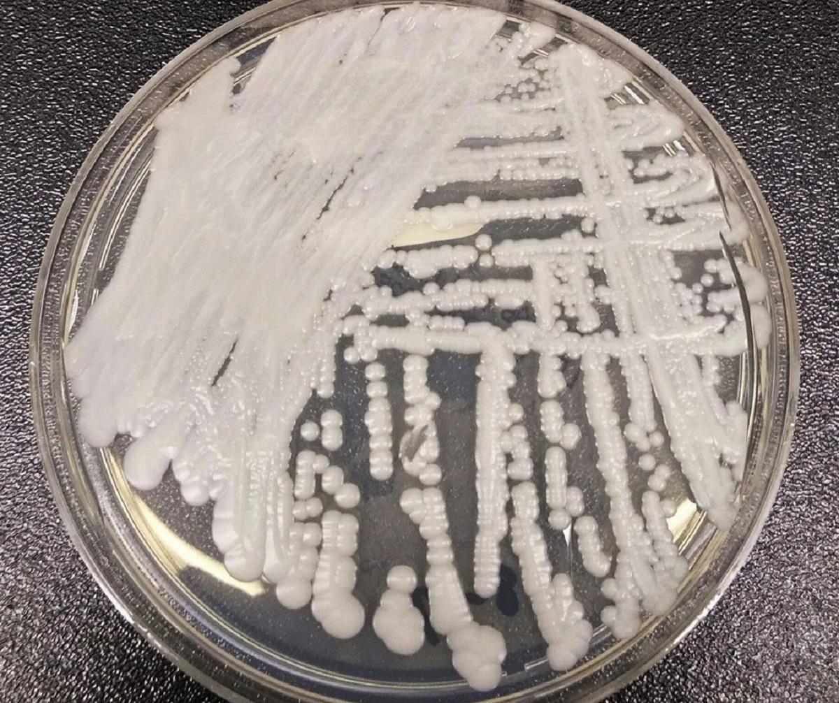 美國疾病控制與預防中心(CDC)一個實驗室在培養皿中培養出的「耳念珠菌」(Candida auris)。AP