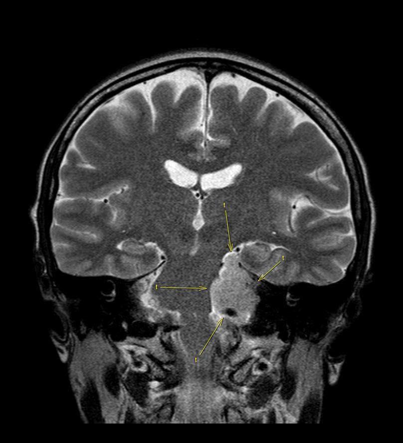 陳淑莊腦部現4.2cm腫瘤。