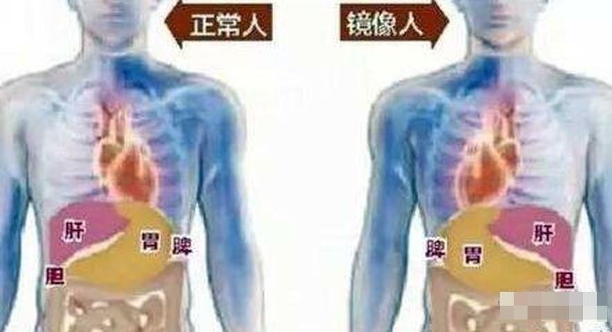 醫生發現女嬰多個內臟的位置與正常人相反,即是俗稱的「鏡面人」。網圖