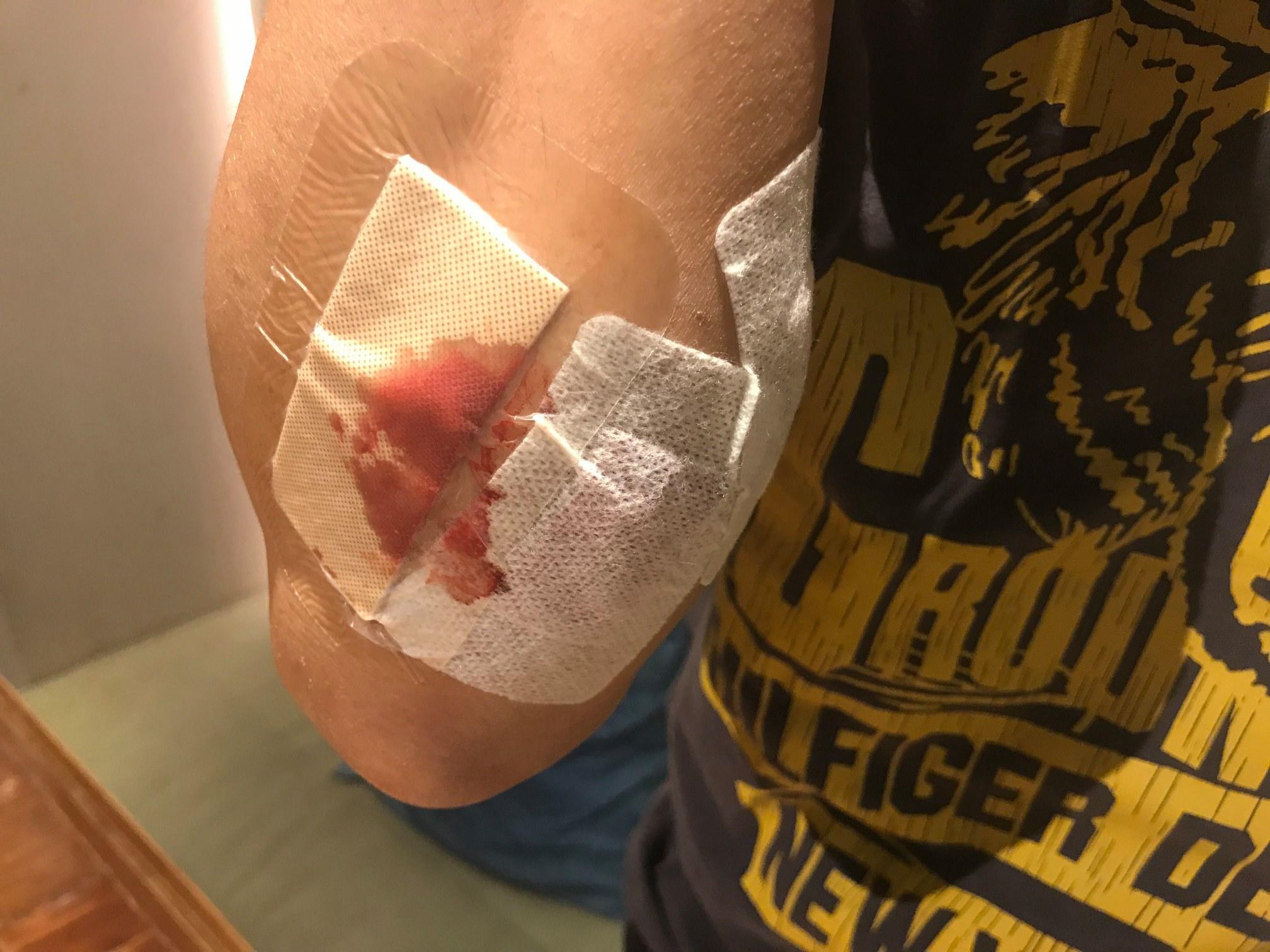 楼主丈夫手部受伤。「拉布拉多谷Labrador Valley」fb群组图片