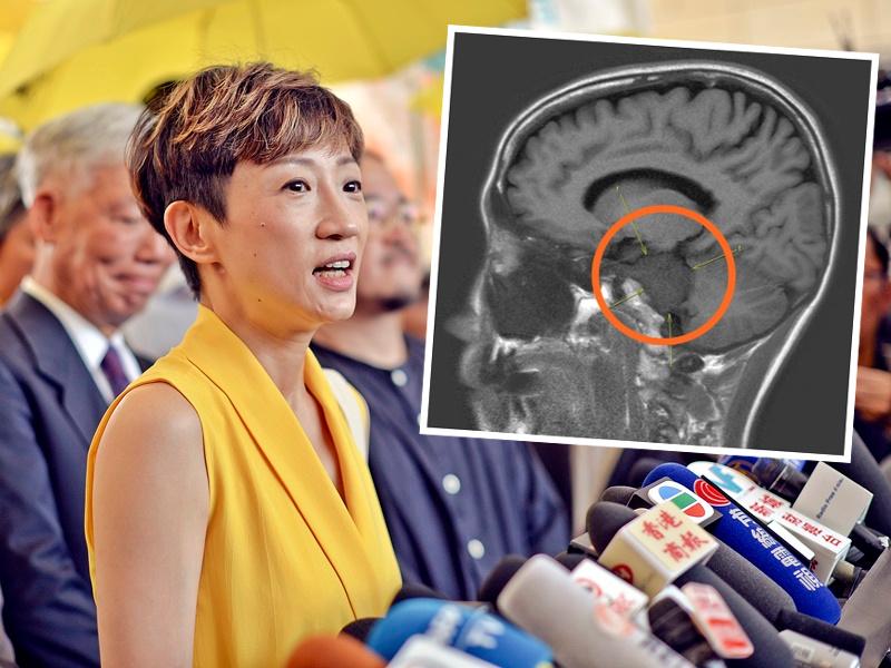 陈淑庄日前已完成切除脑瘤手术。资料图片