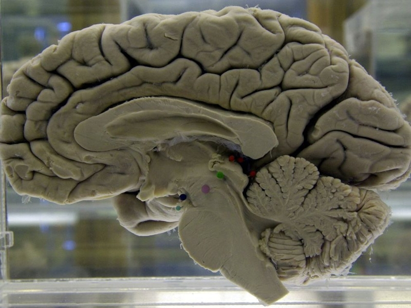世界衛生組織公布首份預防認知障礙症的指南。網上圖片