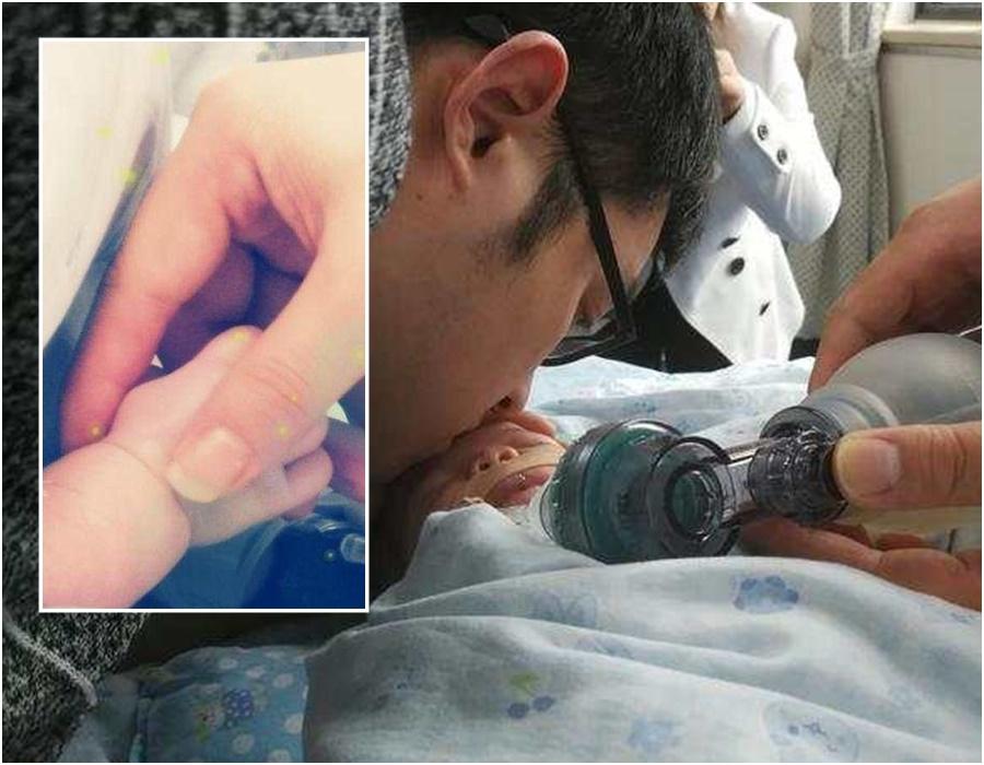 父親為自己出生6天離世的女兒小毛豆安排捐獻器官。網上圖片